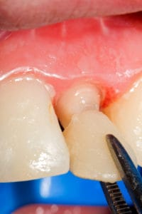 Resin ( acrylate ) crown for temporary crown treatment, that are used in cases when the patien has to walk away with buffed teeth from the dentist. These have protective role on teeth,  with less regard on aestetics.